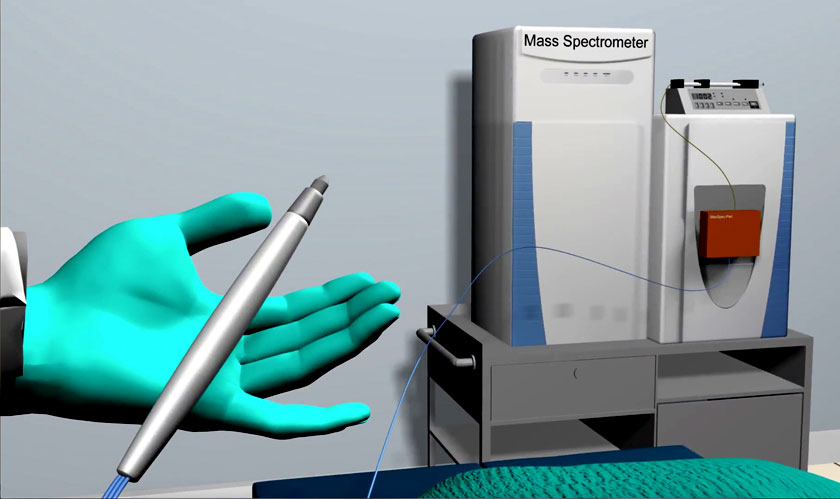 a pen could detect cancer in just 10 seconds