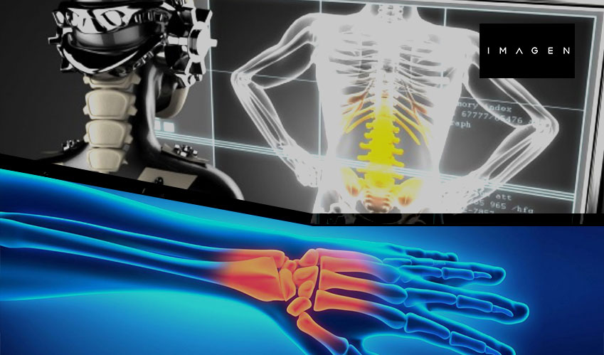 AI tools that detect wrist fractures get FDA approval