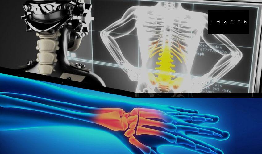 healthcare ai detect wrist fractures