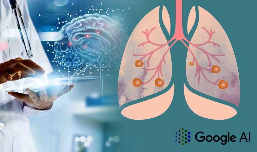 healthcare google ai lung cancer