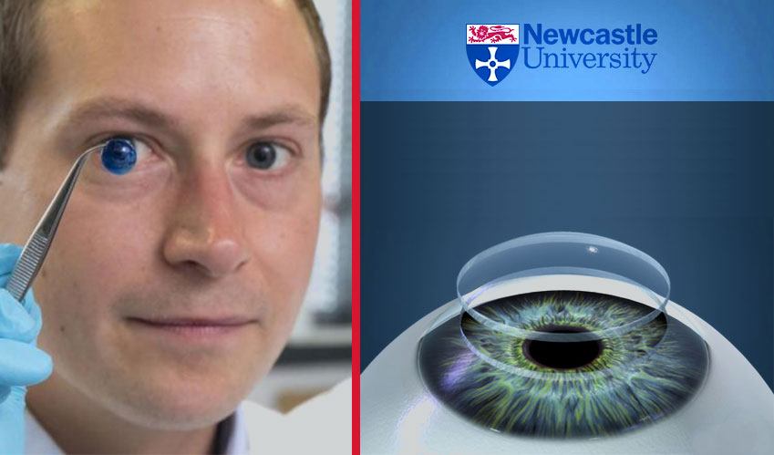A highly advanced 3D printed artificial cornea is creating history